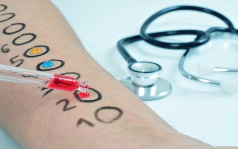 Аллергопробы. С какого возраста возможны аллергопробы для детей. Что такое скарификационные и прик-тесты на аллергены. Как исследуют кровь на аллергены. Стоимость аллергопроб в Новосибирске.