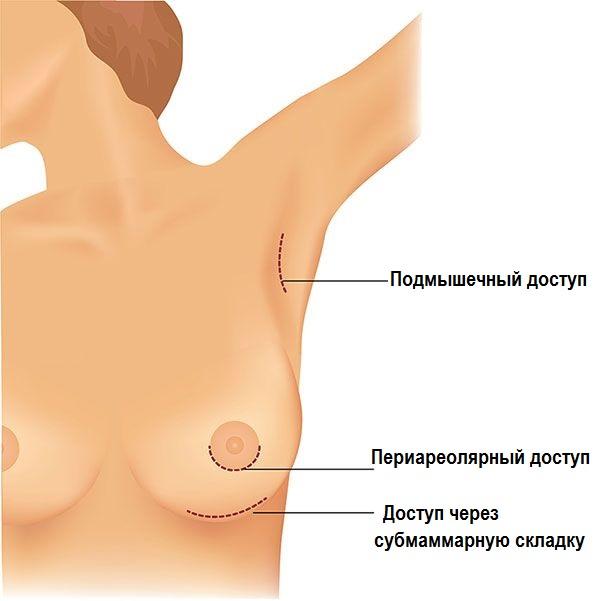 Уломала висящая грудь первого размера с большим соском фото