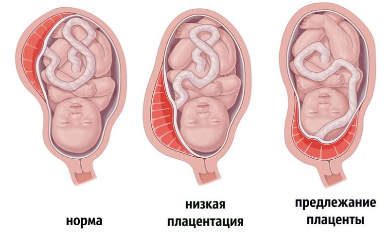 Беременность 22 недели занятие сексом при краевом предлежании плаценты