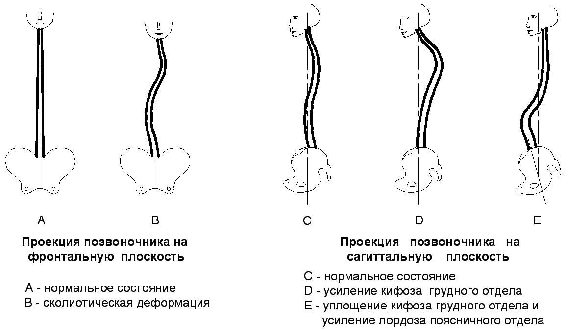 Корсет узор для лечения сколиоза