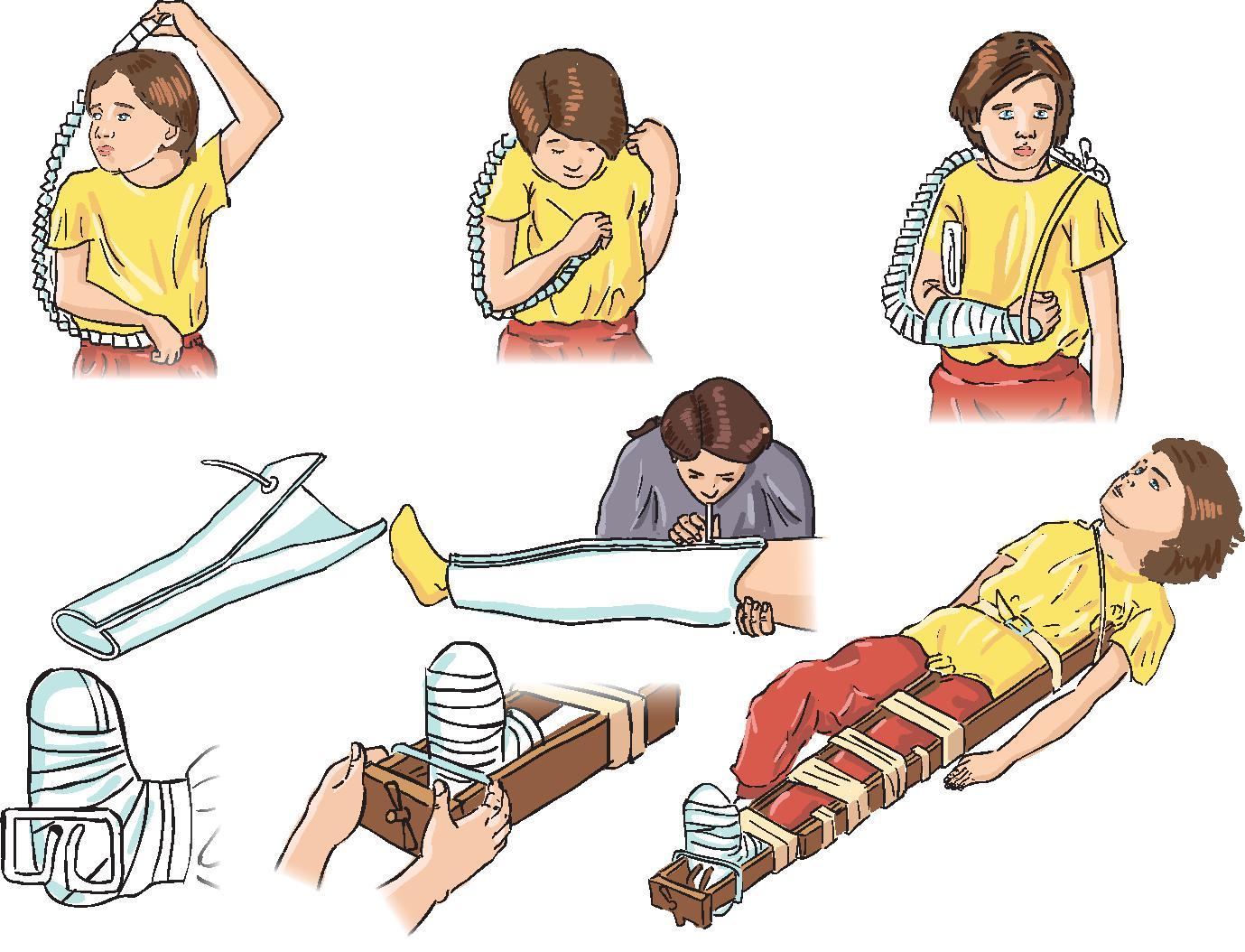 Сколько суставов захватывает шина при иммобилизации бедра методы лечения дисплазии тазобедренных суставов детей