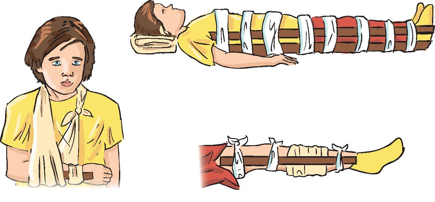 Какие суставы можно иммобилизовать при переломе бедра майя правый тазобедренный сустав
