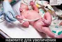 Обвитие пуповиной: причины, диагностика, последствия, профилактика - Наблюдение беременности
